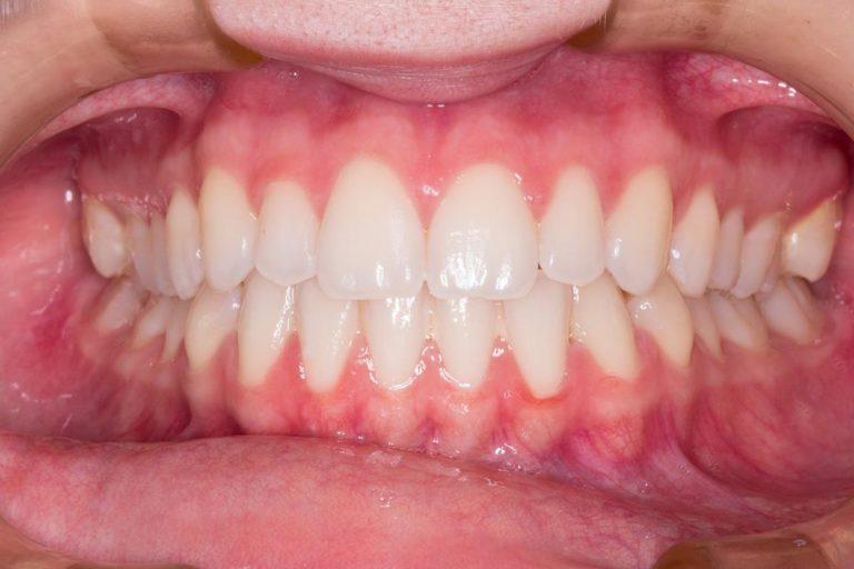 Skuteczne i estetyczne leczenie krzywych zębów oraz zgryzu